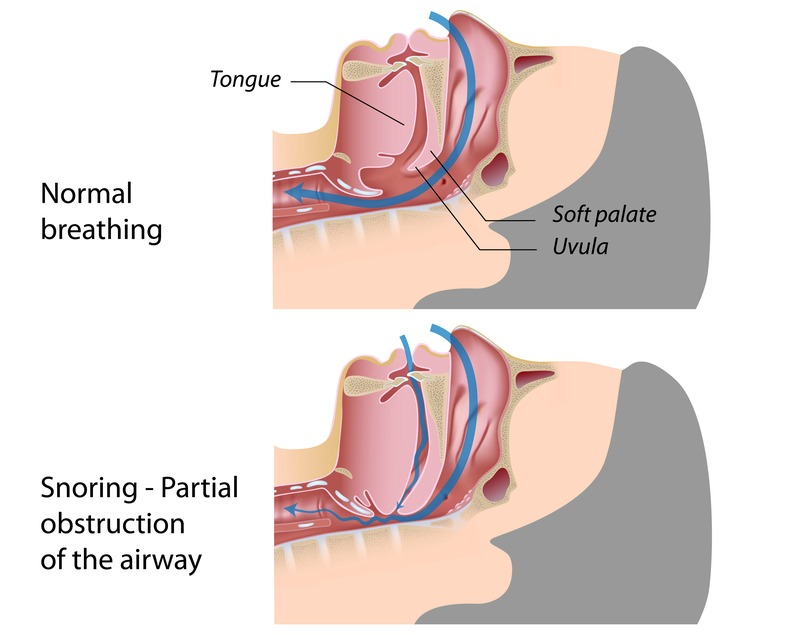 Snoring is caused by a partial blockage to the airway